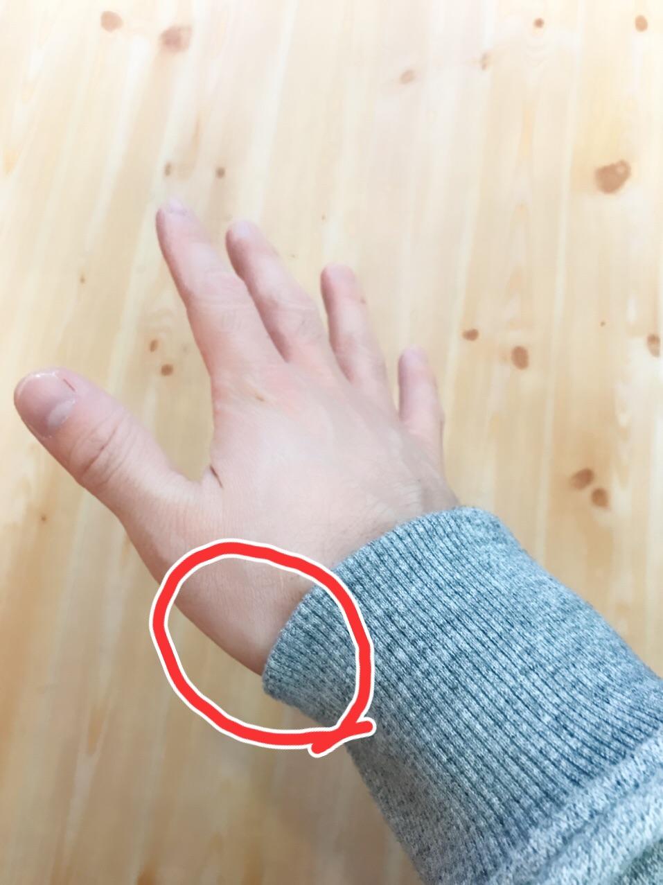 付け根 親指 右手親指の付け根に硬いこぶ